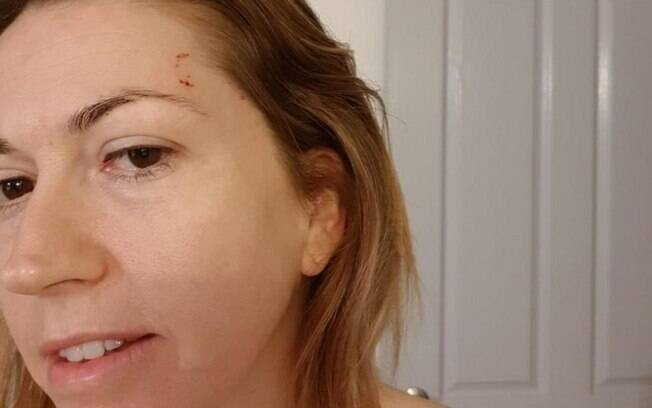 snake bite mark on woman's forehead